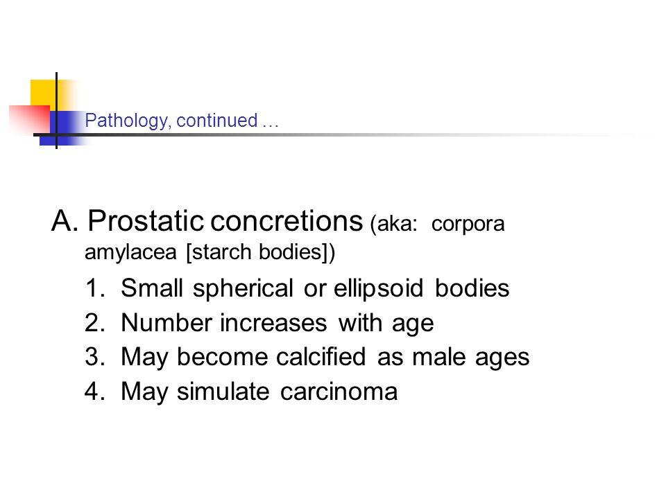 Prostatic concretions (aka: corpora amylacea [starch bodies])